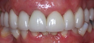 Crownsveneers after